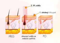 SYSTEMAT IPL VELVET epilátor odstraňovač chloupků (růžový)